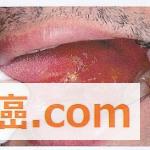 舌癌初期でも舌を切除するのか