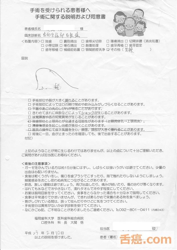 舌癌の手術の同意書