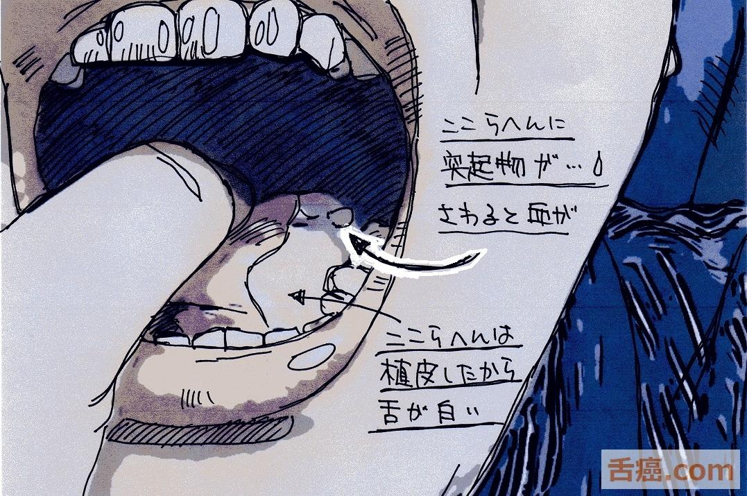 舌癌の後の状態