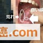 【舌癌の疑い】無くなった白い線と新たな問題とは