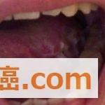 【舌癌手術後27日目】舌癌手術の後遺症とリハビリ