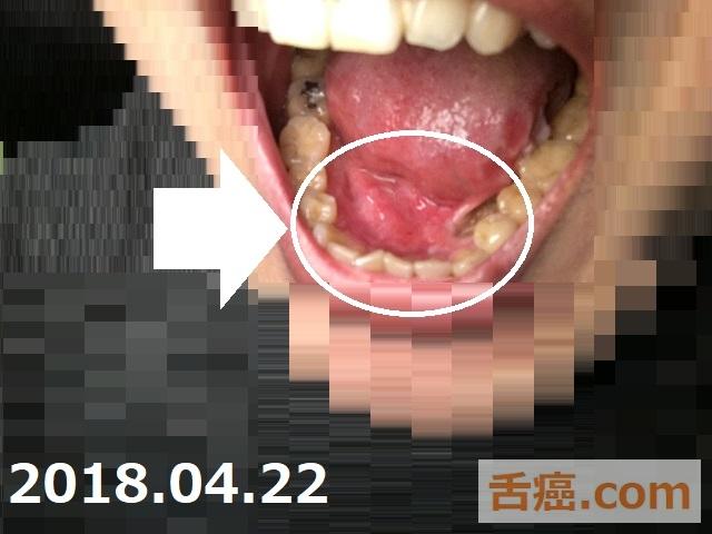 舌癌の様子