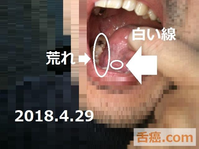 舌の白い線