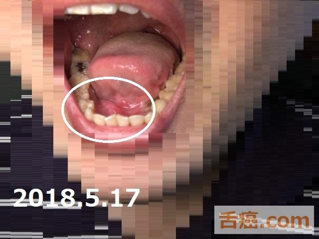 口の中の状態と舌癌